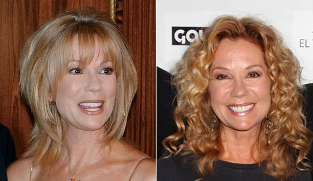 Kathie Lee Gifford Facelift Plastic Surgery Before and After