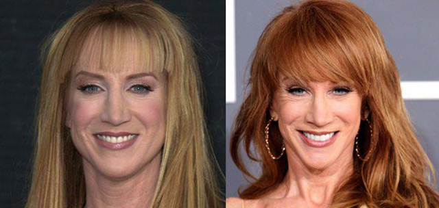 Kathy Griffin Nose Job Plastic Surgery Before and After