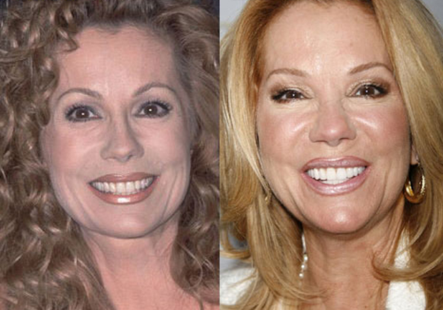 Kathie Lee Gifford Plastic Surgery Before and After Botox Injections