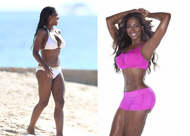 Kenya Moore Buttock Implants Plastic Surgery Before and After