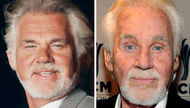 Kenny Rogers Facelift Plastic Surgery Before and After