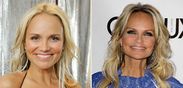 Kristin Chenoweth Plastic Surgery Before and After Botox Injections