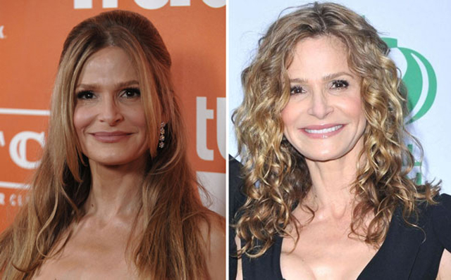 Kyra Sedgwick Facelift Plastic Surgery Before and After