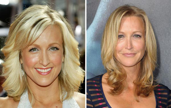 Lara Spencer Plastic Surgery Before and After Botox Injections