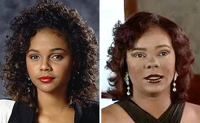 Lark Voorhies Plastic Surgery Before and After Botox Injections
