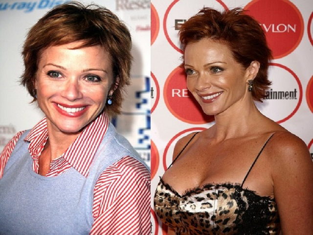 Lauren Holly Facelift Plastic Surgery Before and After