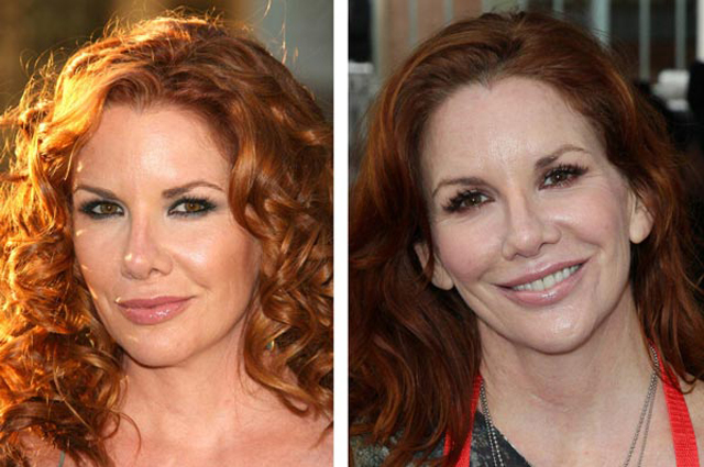 Melissa Gilbert Nose Job Plastic Surgery Before and After