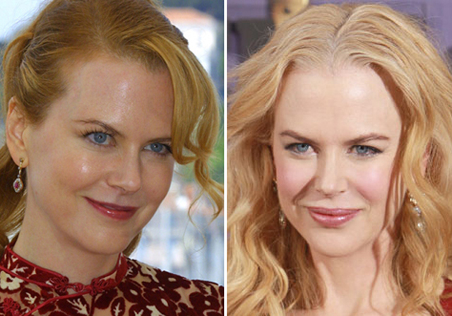 Nicole Kidman Plastic Surgery Before and After Botox Injections