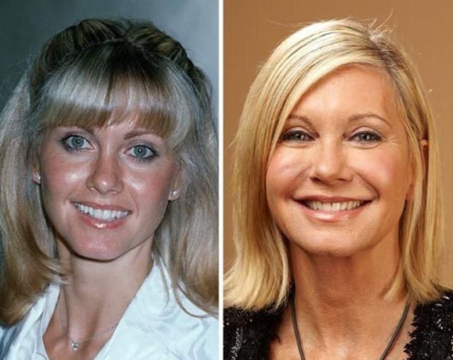 Olivia Newton-John Facelift Plastic Surgery Before and After