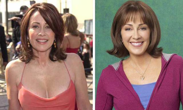 Patricia Heaton Plastic Surgery Before and After Botox Injections