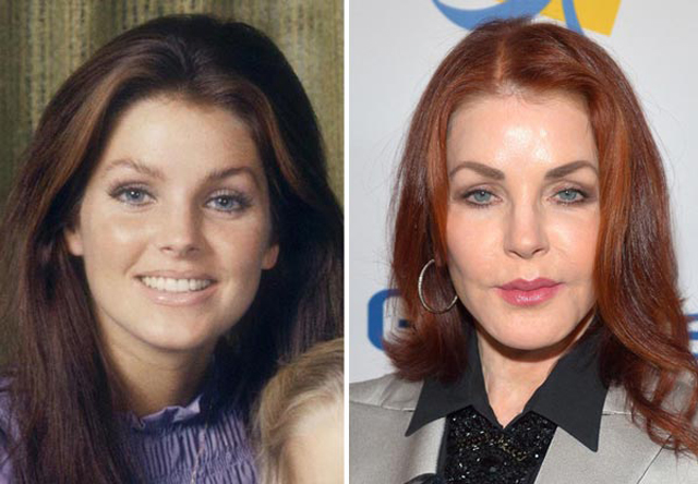 Priscilla Presley Facelift Plastic Surgery Before and After