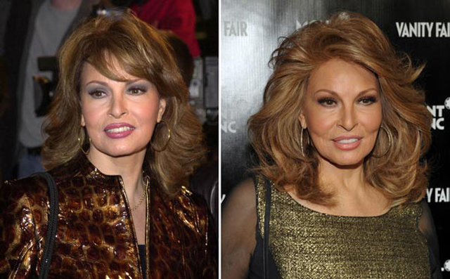 Raquel Welch Plastic Surgery Before and After Botox Injections