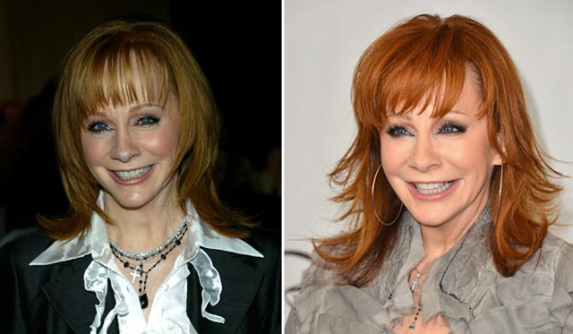 Reba McEntire Facelift Plastic Surgery Before and After