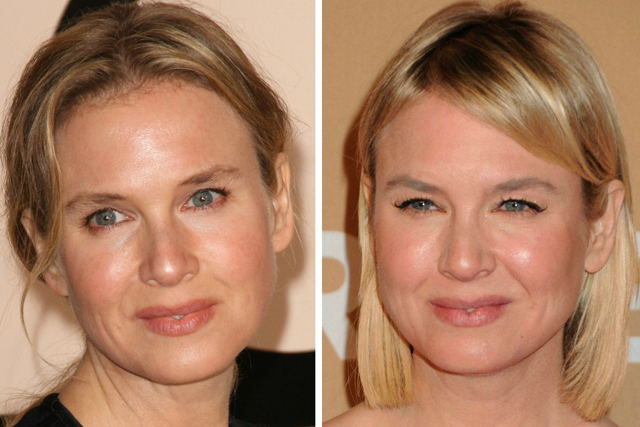 Renee Zellweger Plastic Surgery Before and After Botox Injections