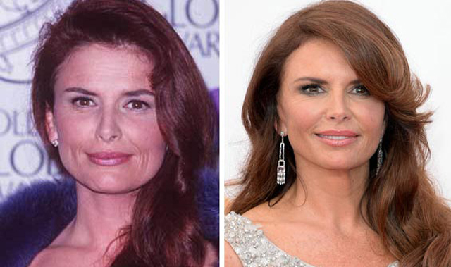 Roma Downey Facelift Plastic Surgery Before and After