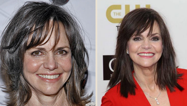 Sally Field Facelift Plastic Surgery Before and After