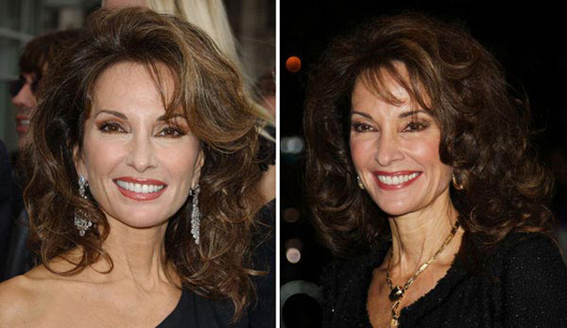 Susan Lucci Plastic Surgery Before and After Botox Injections