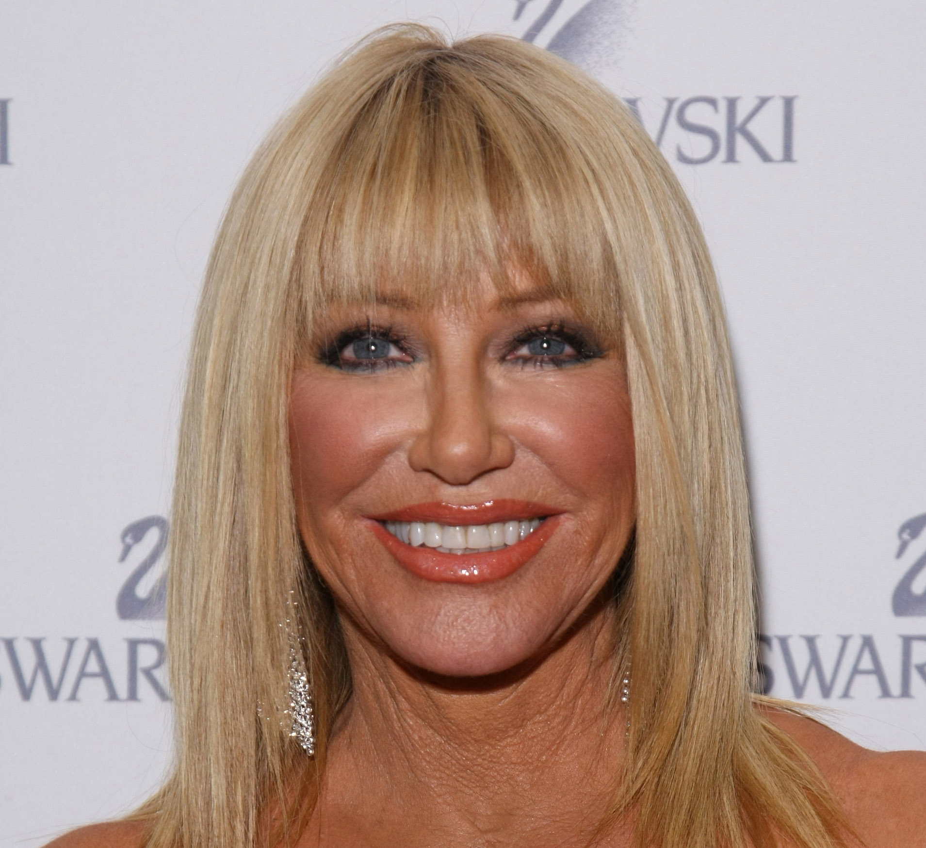 Suzanne Somers Facelift Plastic Surgery Before and After | Celebie