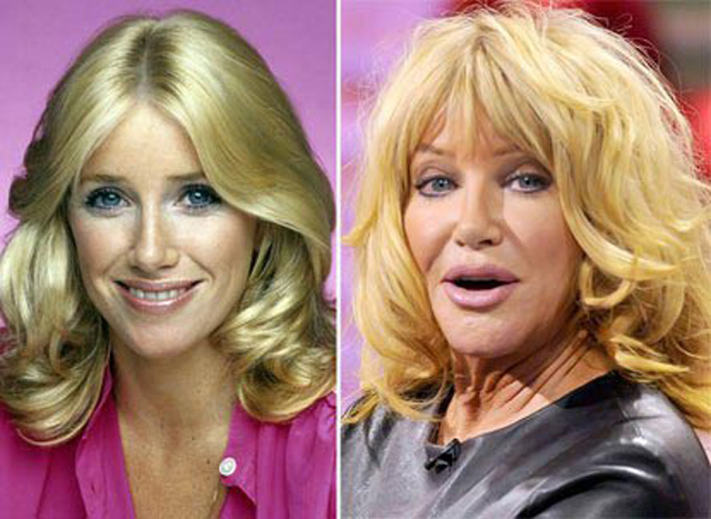 Suzanne Somers Facelift Plastic Surgery Before and After