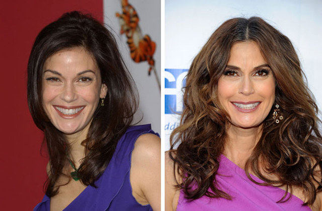 Teri Hatcher Plastic Surgery Before and After Botox Injections