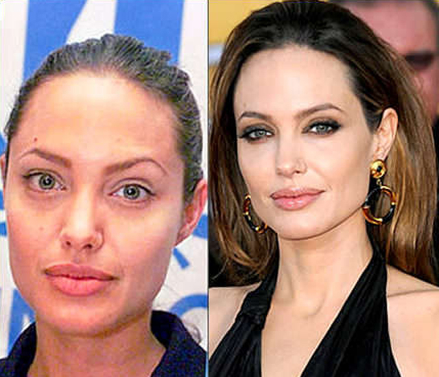 Angelina Jolie Plastic Surgery Before and After Botox Injections
