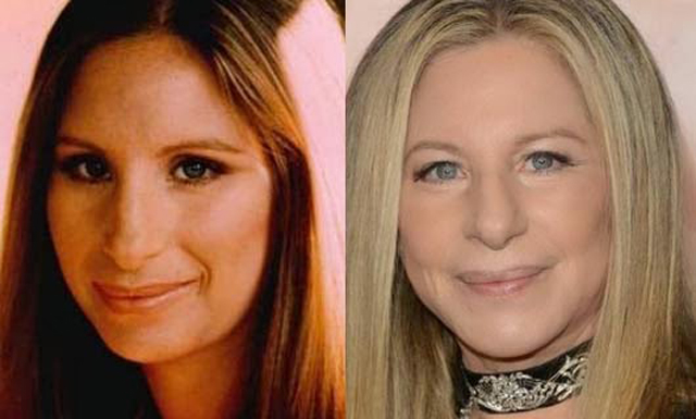 Barbra Streisand Facelift Plastic Surgery Before and After