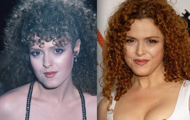 Bernadette Peters Plastic Surgery Before and After Botox Injections