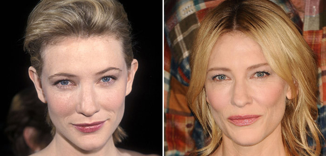 Cate Blanchett Facelift Plastic Surgery Before and After