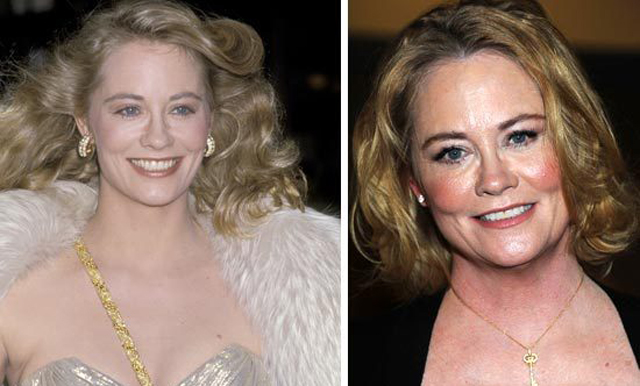 Cybill Shepherd Plastic Surgery Before and After Botox Injections