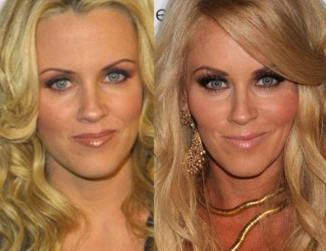 Jenny McCarthy Plastic Surgery Before and After Botox Injections