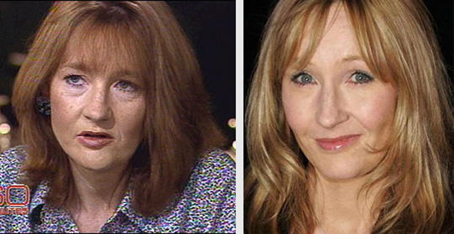 JK Rowling Facelift Plastic Surgery Before and After
