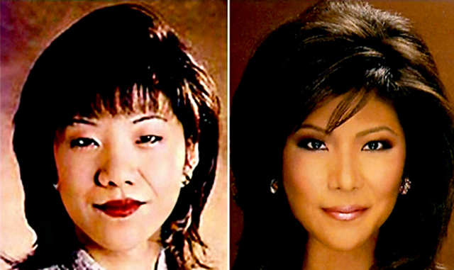 Julie Chen Nose Job Plastic Surgery Before and After