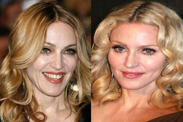 Madonna Facelift Plastic Surgery Before and After