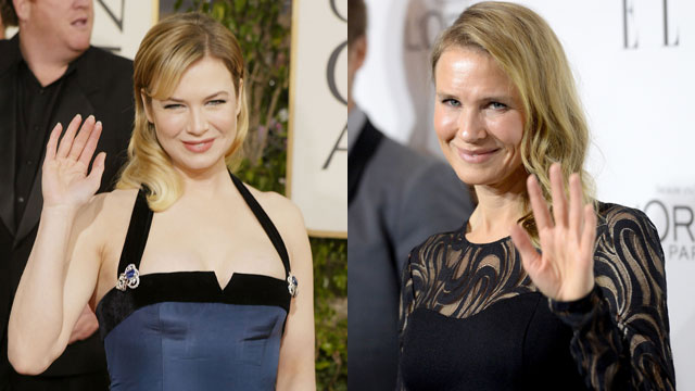 Renee Zellweger Facelift Plastic Surgery Before and After