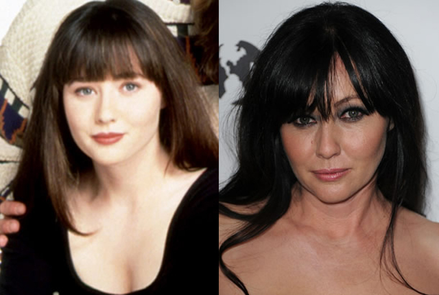 Shannen Doherty Plastic Surgery Before and After Botox Injections