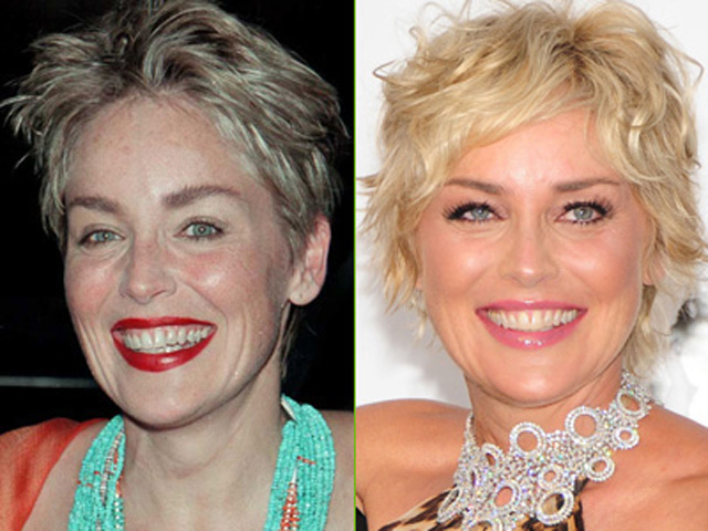 Sharon Stone Plastic Surgery Before and After Botox Injections
