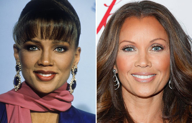 Vanessa Williams Plastic Surgery Before and After Botox Injections