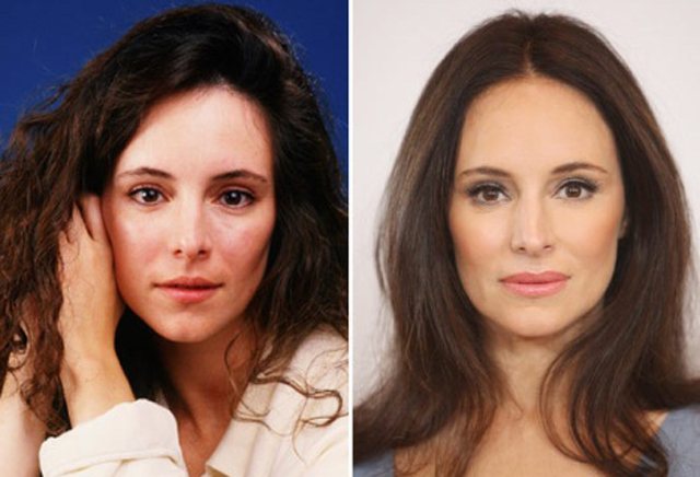 Madeleine Stowe Facelift Plastic Surgery Before and After