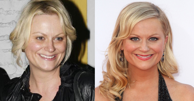 Amy Poehler Plastic Surgery Before and After Botox Injections