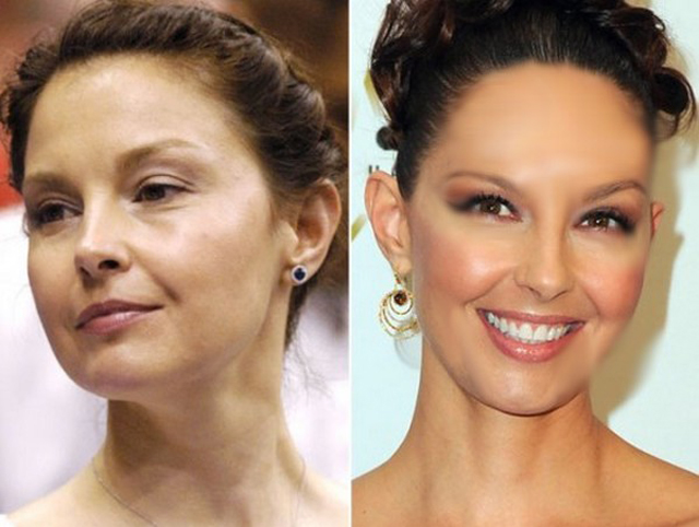 Ashley Judd Facelift Plastic Surgery Before and After