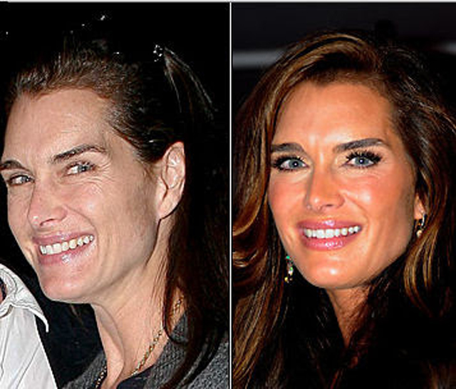 Brooke Shields Plastic Surgery Before and After Botox Injections