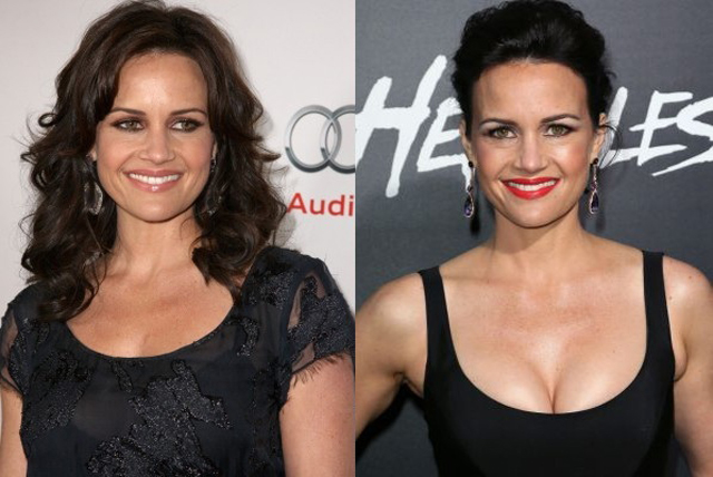 Carla Gugino Plastic Surgery Before and After Botox Injections