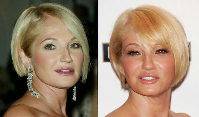 Ellen Barkin Facelift Plastic Surgery Before and After