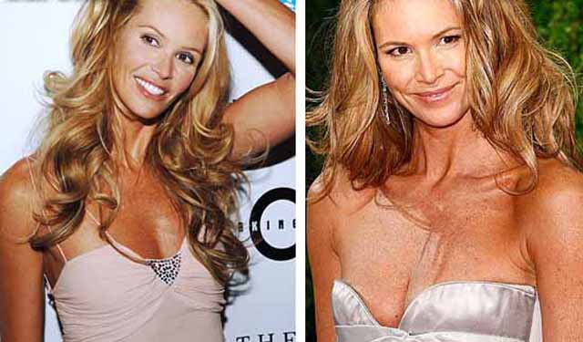 Elle Macpherson Breast Implants Plastic Surgery Before and After