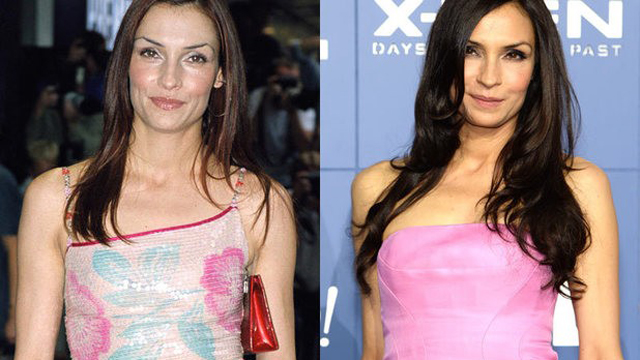 Famke Janssen Plastic Surgery Before and After Botox Injections