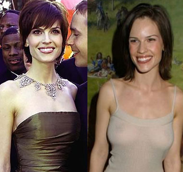 Hilary Swank Breast Implants Plastic Surgery Before and After