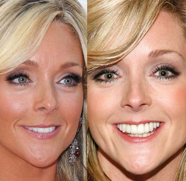 Jane Krakowski Plastic Surgery Before and After Botox Injections