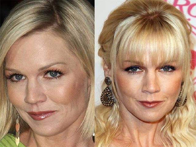 Jennie Garth Plastic Surgery Before and After Botox Injections