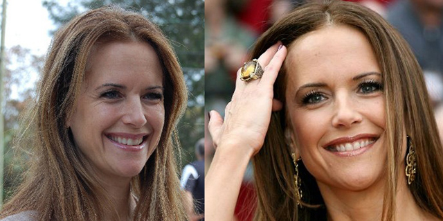 Kelly Preston Facelift Plastic Surgery Before and After