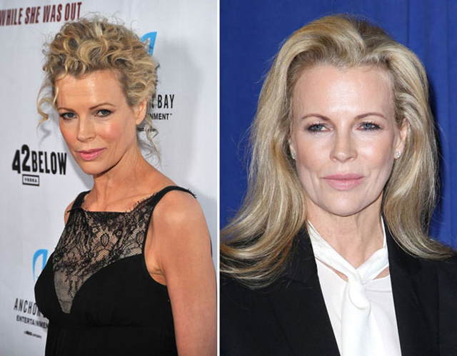 Kim Basinger Facelift Plastic Surgery Before and After
